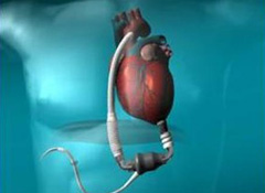 HeartMate II & III and HeartWare LVAD Training Class